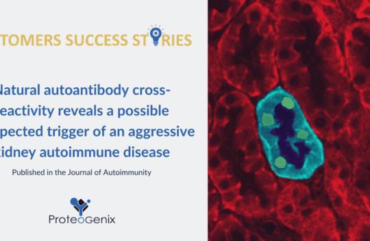 journal of autoimmunity